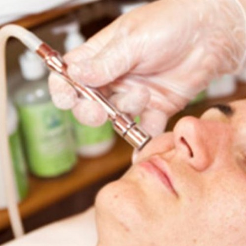 Employ the Best Laser Treatment for Acne Scars