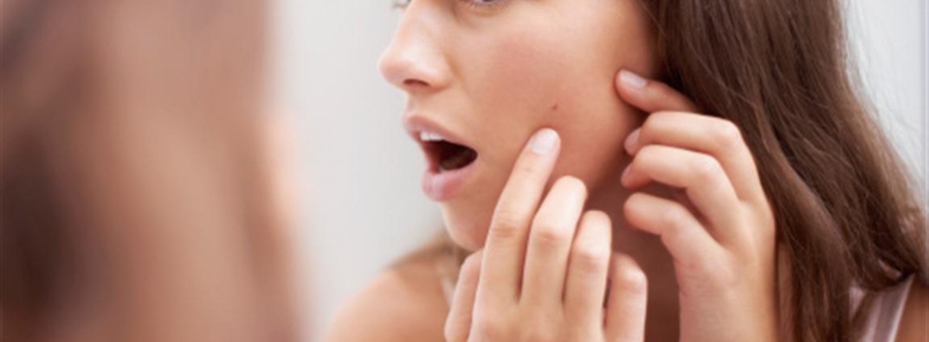 The Best Home Remedies for Back Acne