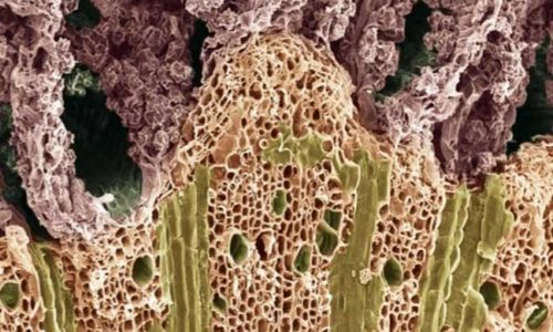 What are xylem and the functions of xylem?