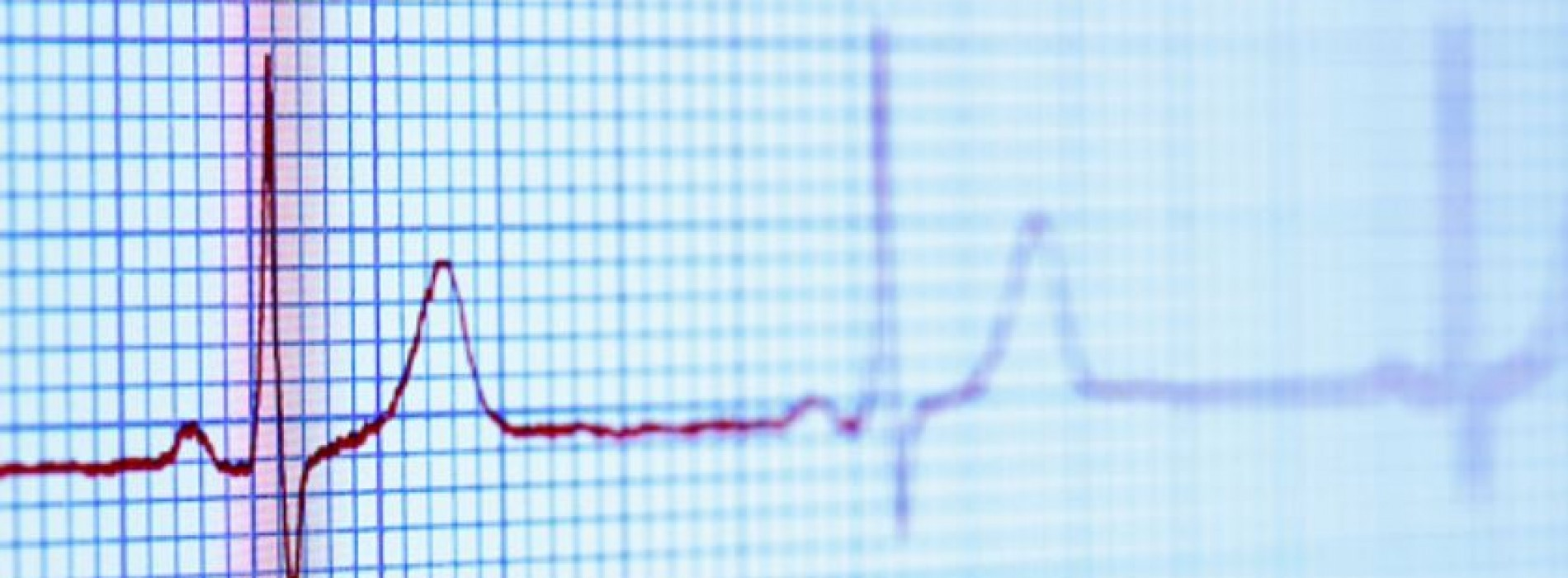 What is heart rate and benefits of the heart rate monitoring?