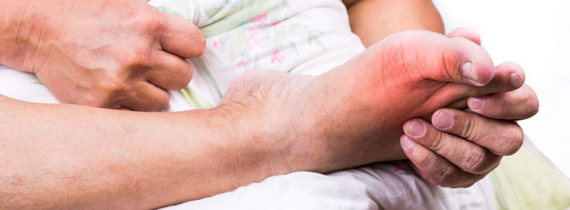 19 Ideal Natural Remedies for Treating Swollen Feet and Ankles